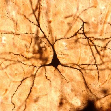 Pyramidal cell. Cerebral cortex